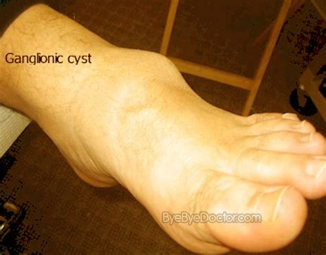 cyst on paw ganglion cyst foot pictures symptoms surgery treatment removal