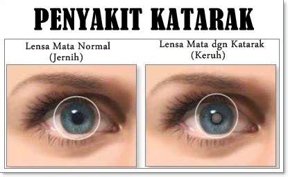 Obat Herbal Penderita Katarak obat mata katarak paling uh ada disini