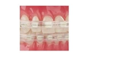 comfort covers for braces comfort cover for dental braces