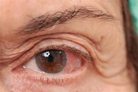see what you would look like with different color hair entenda as diferen 231 as entre o glaucoma cr 244 nico e o agudo