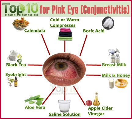 home remedies for pink eye conjunctivitis top 10 home