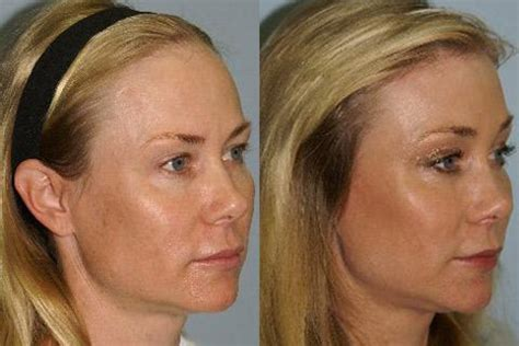 high hairlines a firm of beauty in women forehead reduction san francisco ca