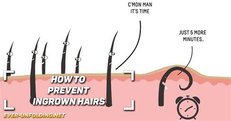 ingrown hair diagram how to prevent ingrown hairs 171 unfolding
