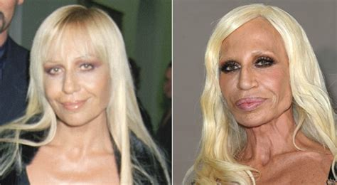 How To Smell Like Donatella Versace by Plastic Surgery Wrong