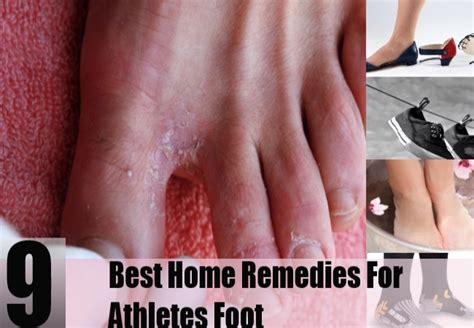 athletes foot home remedies treatments cure