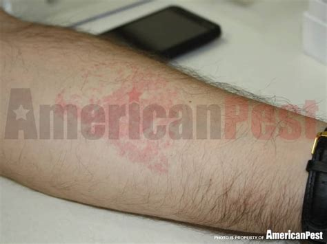 can bed bugs cause hives can bed bugs cause hives 28 images bed bug rash