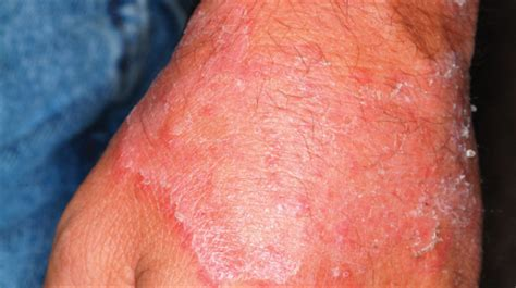 ringworm look alikes drgreenecom growing skin plaques with scale