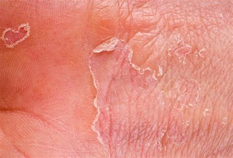 skin conditions eczema picture image on medicinenet