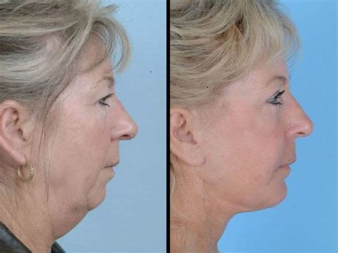 hairstyles that hide sagging jaw line surgery for sagging neck skin ulthera before and after
