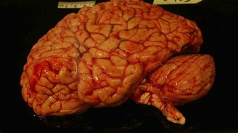 for the brain wanted your healthy brain when you re done with it