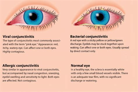 symptoms of pink eye conjunctivitis or pinkeye symptoms and treatments