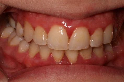 healthy gum color gum disease pictures what do healthy gums look like