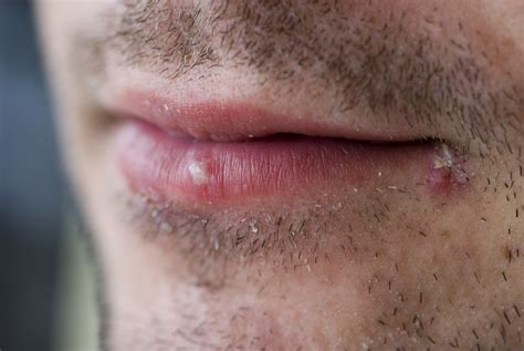 Cold Sore Viral Shedding by 6 Tips To Protect Your From The Cold Health