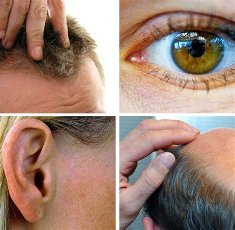 wann haare färben bluterguss wann blaue flecken wirklich gef 228 hrlich werden