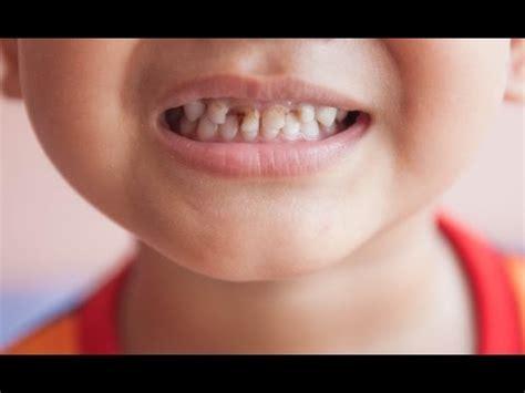 Hygiene Of Childhood dental hygiene early childhood caries