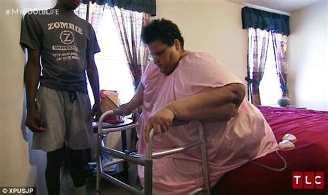nowzaradan obese morbidly obese 750lb woman has massive fatty lump weighing