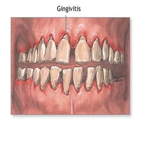 top 7 home remedies for gingivitis remedies for