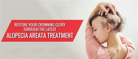 tattoo cost in guwahati best alopecia areata treatment in india dr paul s