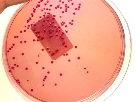 Klebsiella Oxytoca In Stool Culture by Gram Stain Definition And Patient Education