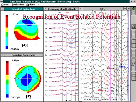 eeg pattern recognition quiz softcomputing real time signal analysis speech