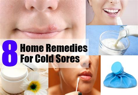 home remedies for cold sores treatments cure