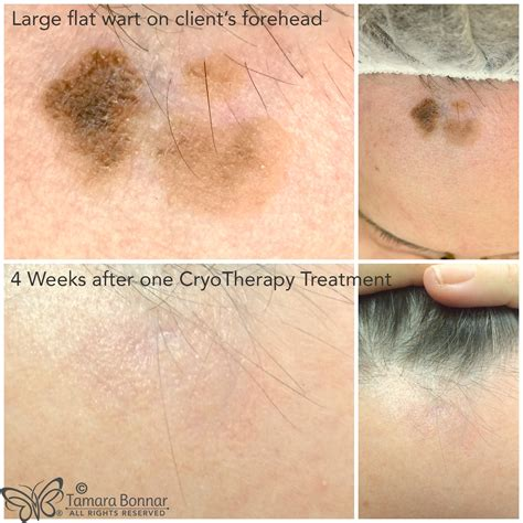 cryosurgery tattoo removal tamara bonnar cryotherapy treatment of flat wart by tamara