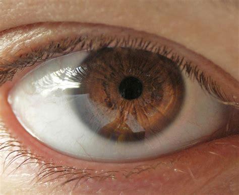what does my eye color what does my eye color yahoo answers