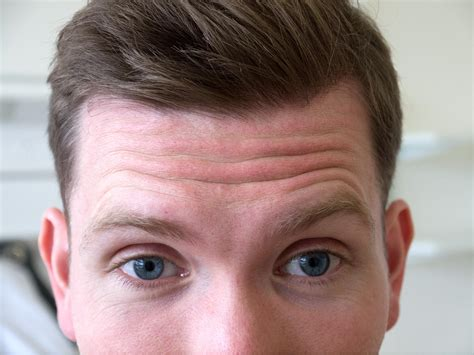 wrinkly forehead hair images for gt protruding forehead profile foreheads