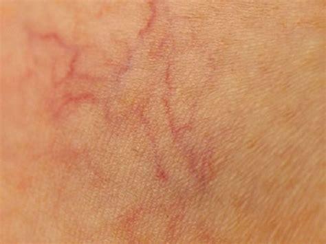 rottura vasi capillari cicciottelli it 9 modi per prevenire i capillari