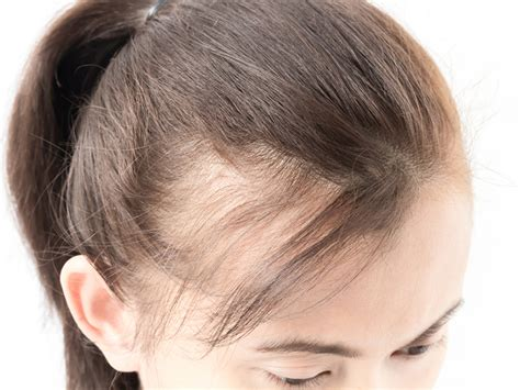 haircuts for female pattern baldness toronto hair transplant clinic on how your genes affect
