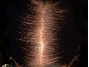 female pattern hair loss medscape female pattern hair loss dermnet new zealand