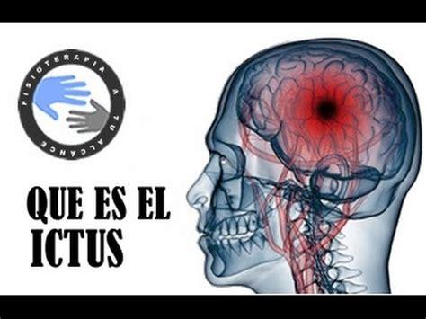 que es imagenes jpg y pdf que es un infarto cerebral ictus o acv por que se