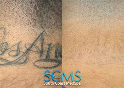 tattoo removal pain neck removal