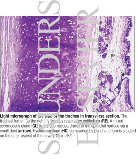 trachea transverse section light micrograph of the wall of the trachea in transverse