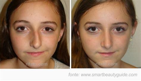 sedere rifatto prima e dopo rinoplastica naso storto foto prima e dopo 0005
