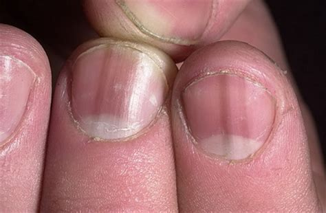 las oscuras manos del 8467915366 ногти часть iii белые желтые черные ногти медицина интересные факты и полезная информация