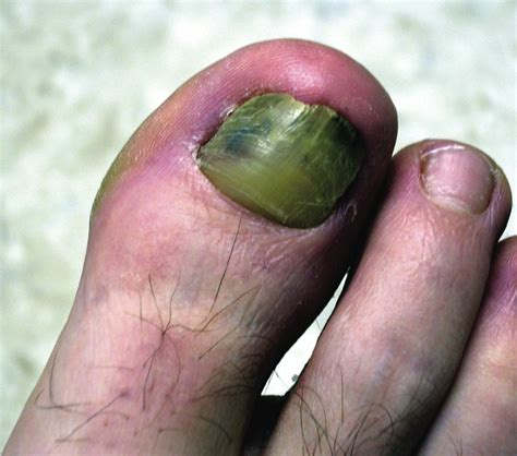 nail bed injury how to address nail bed injuries podiatry today