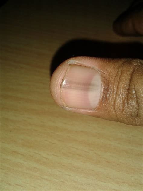 Dark Line On Fingernail | fingernail infection pictures nails journal