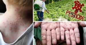 Best and most powerful foods to break down pesticides and