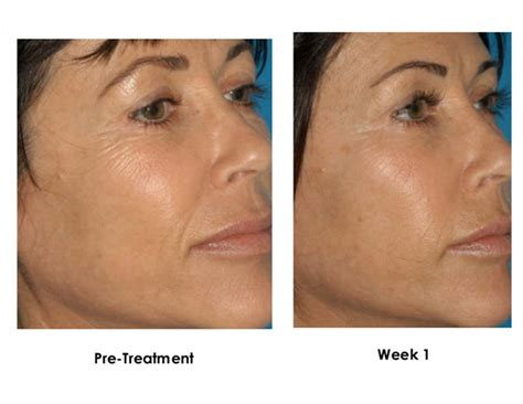 and treatment peels and dermaplaning