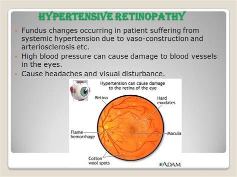 blood pressure swings causes can blood pressure medication cause headaches how to