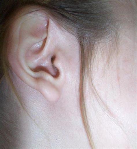 candela cerume come far uscire i tappi di cerume dalle orecchie con il
