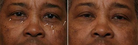 african american and ethnic skin dermatology black