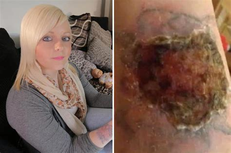 tattoo burning after lotion tattoo removal kit burns hole in woman s arm daily star