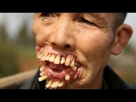 imagenes asquerosas de enfermedades 15 casos de enfermedades m 225 s raros en personas youtube