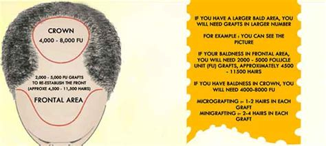 hair transplant calculation hair transplant check hair transplant cost and clients