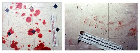 bloodstain pattern analysis notes bloodstain pattern analysis how it s done