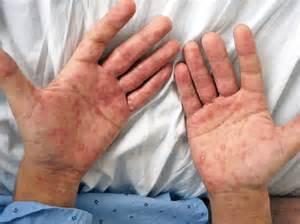 imagenes de un pene enfermo de sifilis s 205 filis sinais e sintomas nos diferentes est 225 gios medifoco