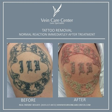 injection tattoo removal removal before after lima oh vein care center