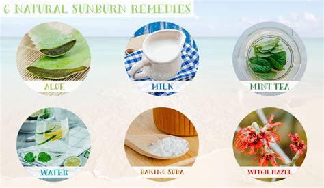 6 sunburn remedies potter home